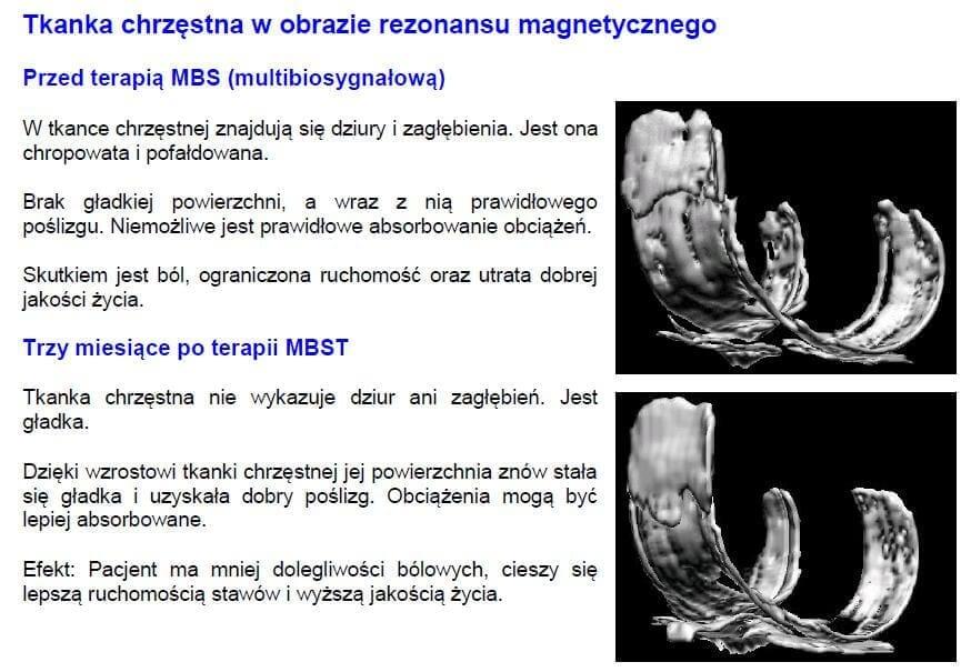 tkanka-chrzestna-w-obrazie-rezonansu